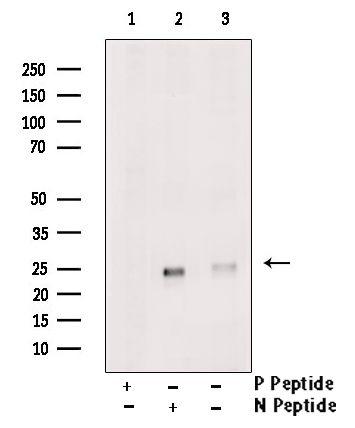 Phospho-RHOA (Thr100) Antibody in Western Blot (WB)