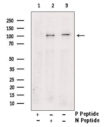 Phospho-PSD-95 (Ser142) Antibody in Western Blot (WB)