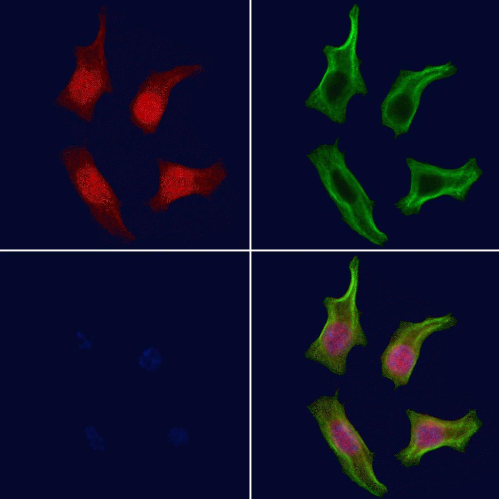 Phospho-Btk (Tyr344) Antibody in Immunofluorescence (IF)