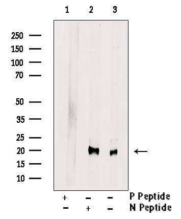 Phospho-PRDX1 (Ser196) Antibody in Western Blot (WB)