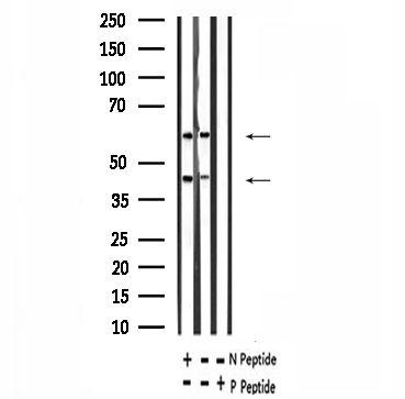 Phospho-CaMKII alpha/beta/delta (Ser235) Antibody in Western Blot (WB)