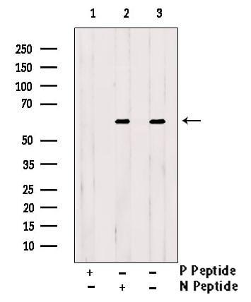 Phospho-GRK1 (Ser21) Antibody in Western Blot (WB)