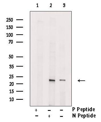 Phospho-NT5C (Ser184) Antibody in Western Blot (WB)