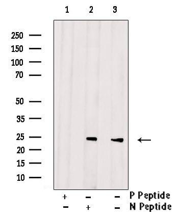 Phospho-Bad (Ser112) Antibody in Western Blot (WB)