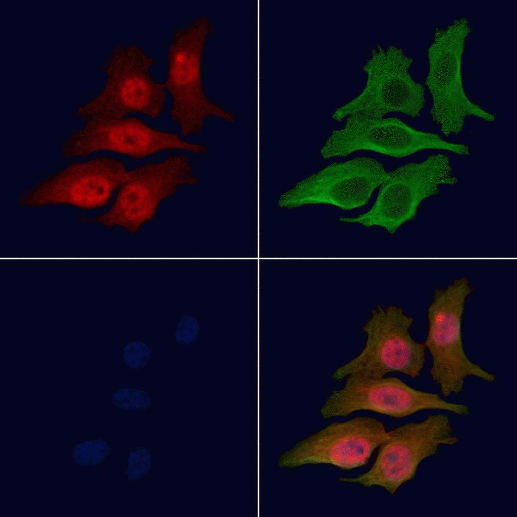 Phospho-LIN28A (Ser200) Antibody in Immunofluorescence (IF)
