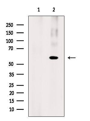 Phospho-RIP3 (Ser304) Antibody in Western Blot (WB)