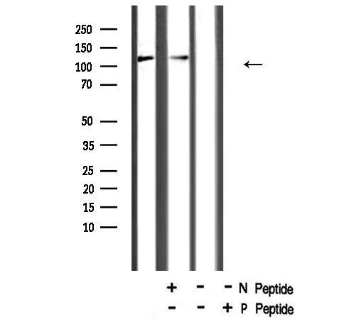 Phospho-NFkB p105 (Ser923) Antibody in Western Blot (WB)