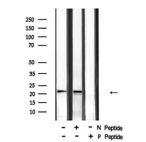 Phospho-RHOA (Ser188) Antibody in Western Blot (WB)
