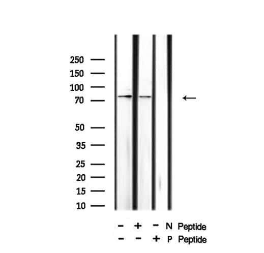 Phospho-HSL (Ser660) Antibody in Western Blot (WB)