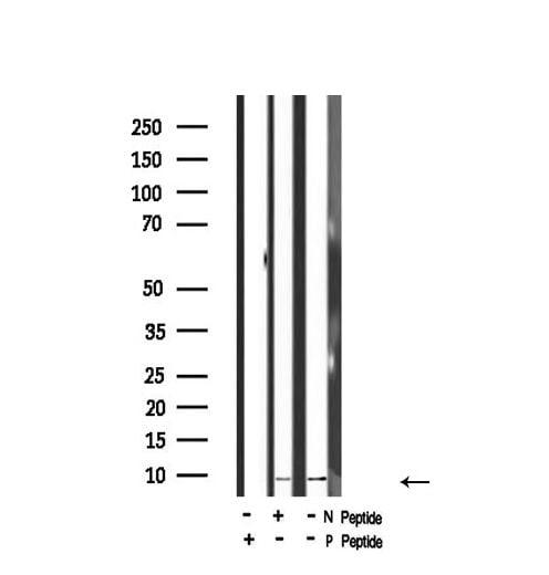 Phospho-HMGN2 (Ser29) Antibody in Western Blot (WB)