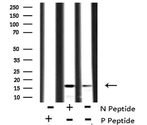 Phospho-VAMP4 (Ser30) Antibody in Western Blot (WB)