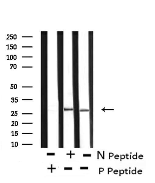 Phospho-Caveolin 2 (Ser36) Antibody in Western Blot (WB)