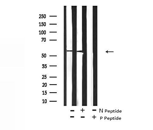 Phospho-PDPK1 (Tyr376) Antibody in Western Blot (WB)