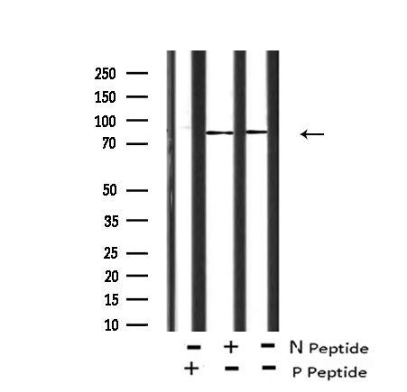 Phospho-FER (Tyr714) Antibody in Western Blot (WB)