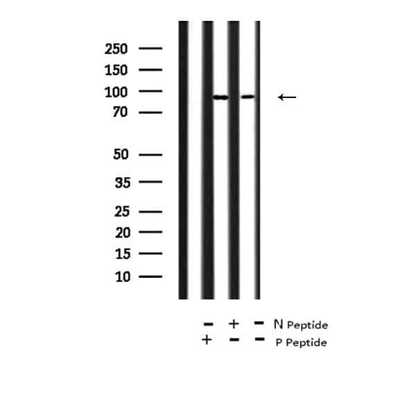 Phospho-FGFR2 (Tyr769) Antibody in Western Blot (WB)