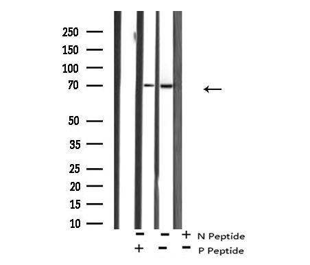 Phospho-p70 S6 Kinase (Ser427) Antibody in Western Blot (WB)