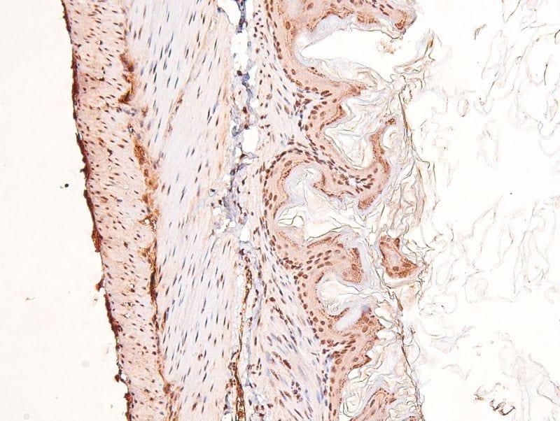 Phospho-FGFR Pan (Tyr653, Tyr654) Antibody in Immunohistochemistry (Paraffin) (IHC (P))