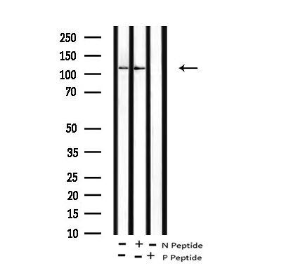 Phospho-EphB1/EphB3/EphB4 (Tyr778, Tyr792, Tyr774) Antibody in Western Blot (WB)