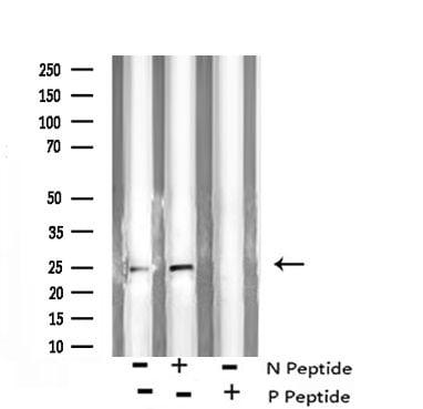 Phospho-Bim (Ser44, Ser104) Antibody in Western Blot (WB)