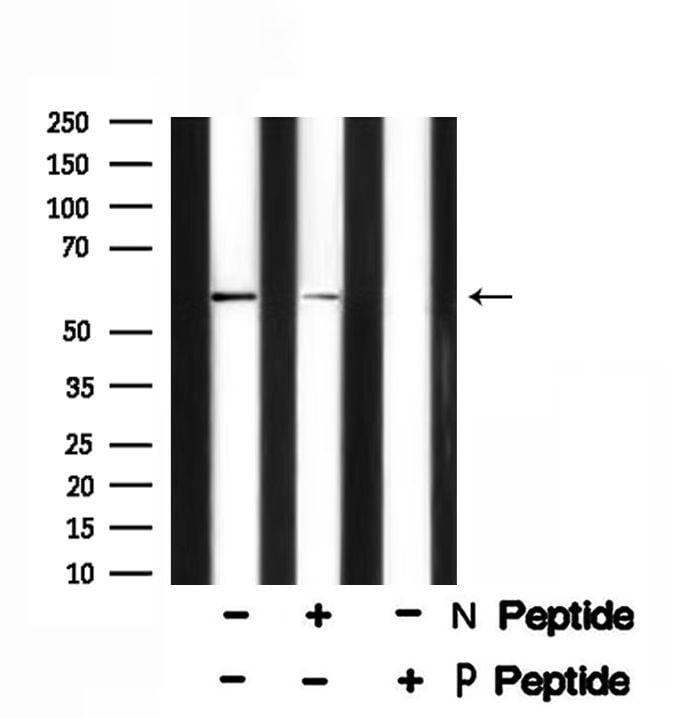 Phospho-Presenilin 1 (Ser353) Antibody in Western Blot (WB)