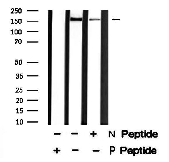 Phospho-LRP6 (Thr1479) Antibody in Western Blot (WB)