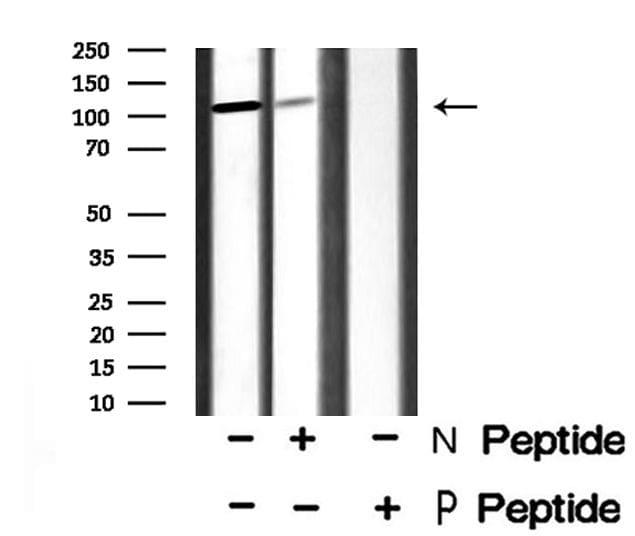 Phospho-ATP1A1 (Tyr260) Antibody in Western Blot (WB)