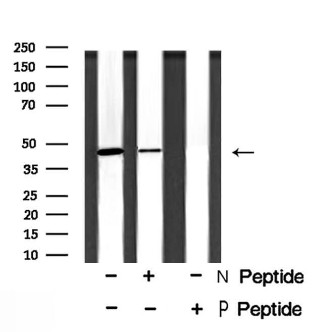 Phospho-NDRG1 (Ser330) Antibody in Western Blot (WB)