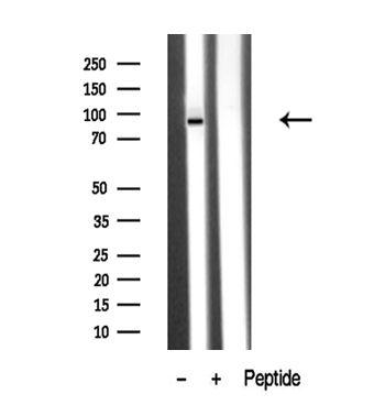 PKD2 Antibody in Western Blot (WB)