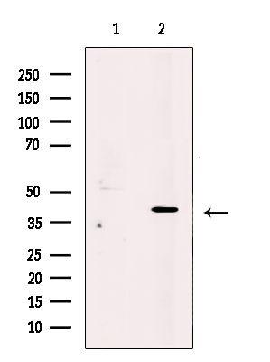 PRPH2 Antibody in Western Blot (WB)