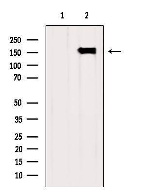 CPS1 Antibody in Western Blot (WB)
