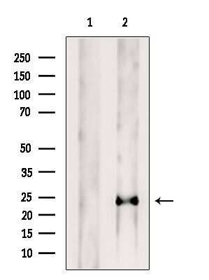 PRL1 Antibody in Western Blot (WB)
