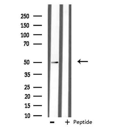 AZI2 Antibody in Western Blot (WB)