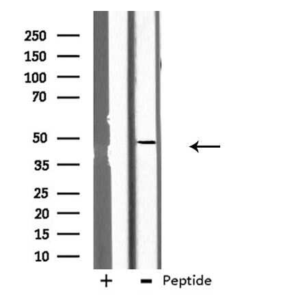 GCNT7 Antibody in Western Blot (WB)