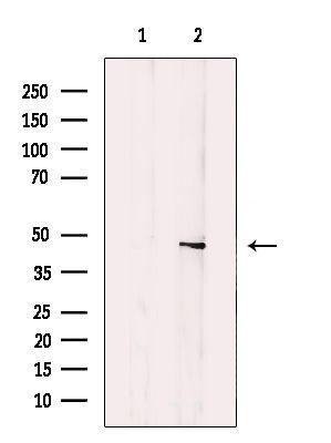 B4GALT1 Antibody in Western Blot (WB)