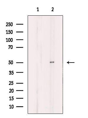 B4GALT3 Antibody in Western Blot (WB)