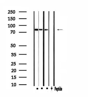 CLCN4 Antibody in Western Blot (WB)