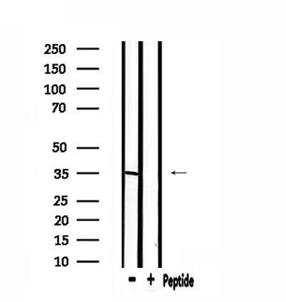 ELOVL6 Antibody in Western Blot (WB)