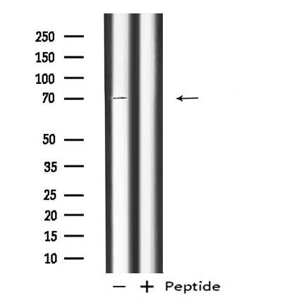 RAP1GAP Antibody in Western Blot (WB)