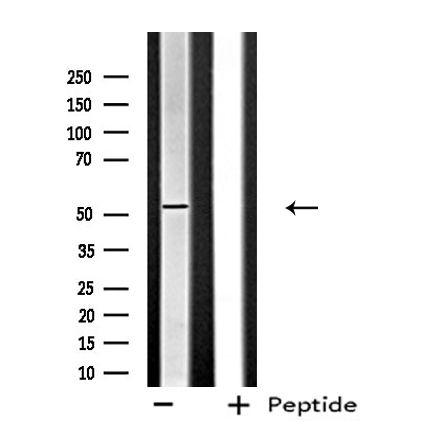 FGFR5 Antibody in Western Blot (WB)