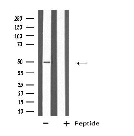 Cytokeratin 37/38 Antibody in Western Blot (WB)