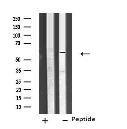 CYP26C1 Antibody in Western Blot (WB)