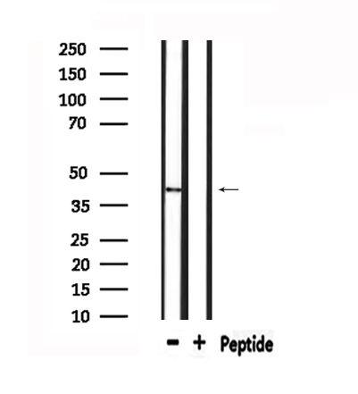 mPR gamma Antibody in Western Blot (WB)