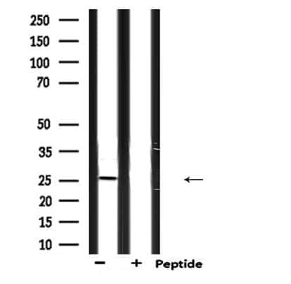 Endothelin 3 Antibody in Western Blot (WB)