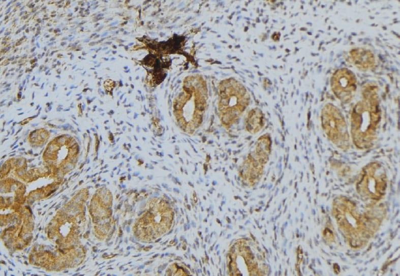 Luteinizing Hormone Antibody in Immunohistochemistry (Paraffin) (IHC (P))