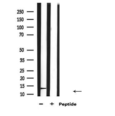 Luteinizing Hormone Antibody in Western Blot (WB)