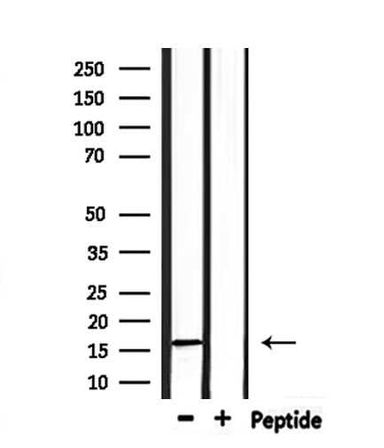 Substance P Antibody in Western Blot (WB)