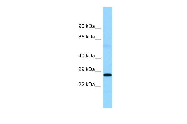 FTMT Antibody in Western Blot (WB)