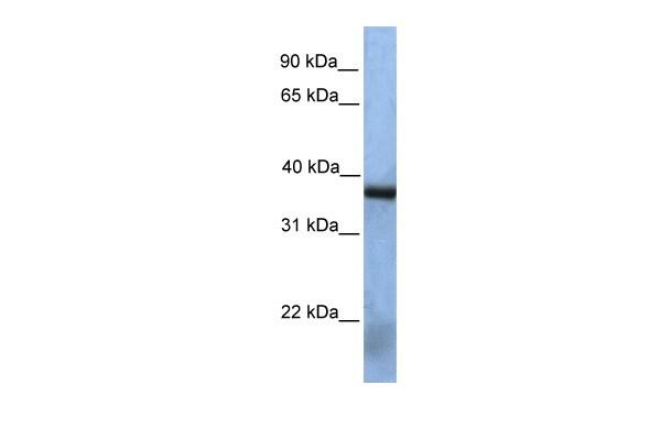 NAA30 Antibody in Western Blot (WB)