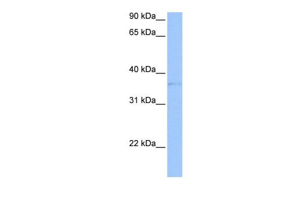 TREML2 Antibody in Western Blot (WB)