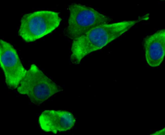 SCN9A Antibody in Immunofluorescence (IF)